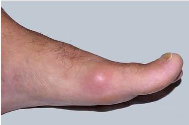痛风结节的原因有哪些?一般由尿酸钠结晶构成