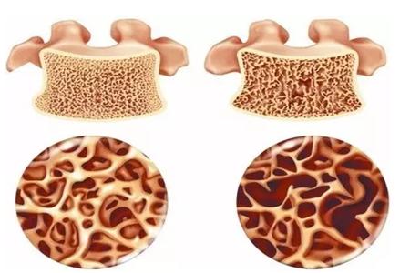 痛风病的治疗方法有哪些?痛风肾的危害?