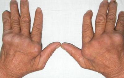 如何正确诊断痛风?急性痛风发作怎么处理?
