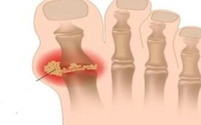 痛风怎么办快速解决?小编教你如何用偏方缓解症状